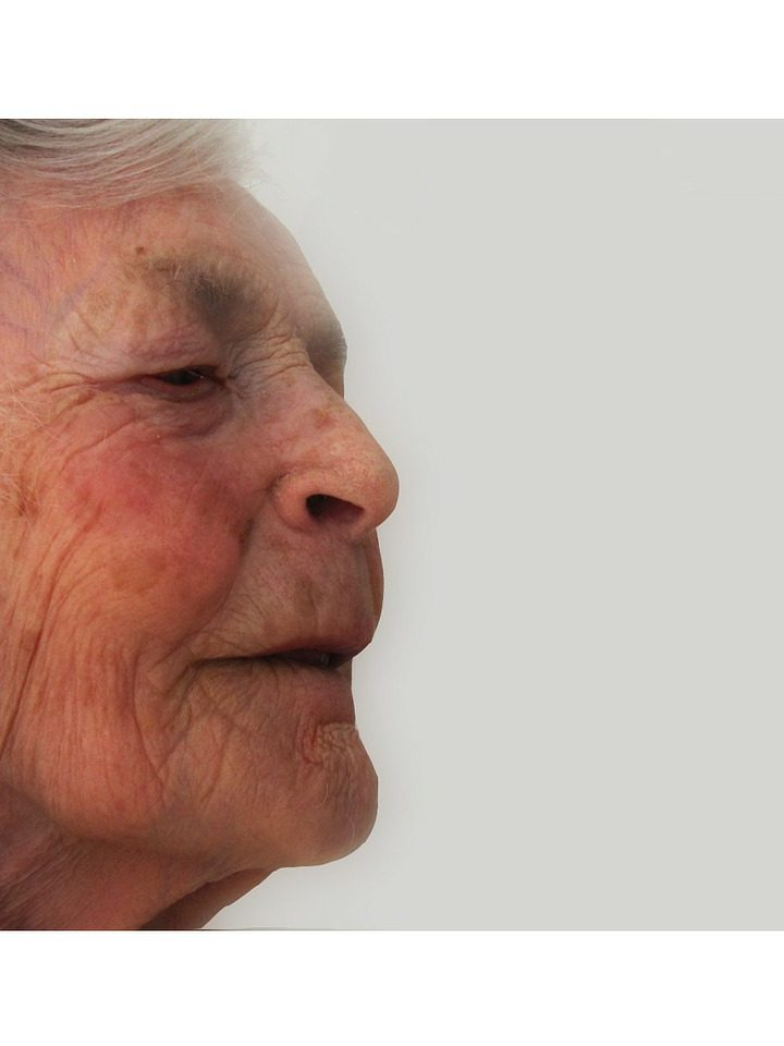 Cómo quitar las manchas de la cara con remedios infalibles